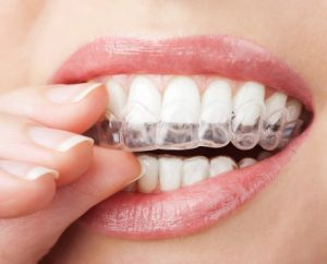 Invisalign clear aligners move teeth into healthier and better-looking alignment. Your Newburyport dentists can tell you if they'll work for you.