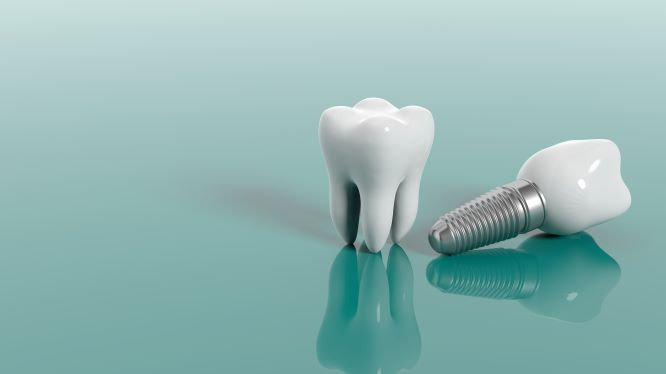 examples of dental implants
