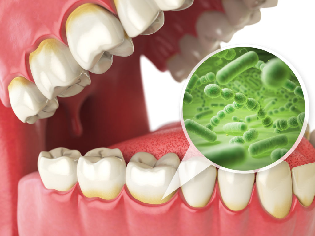 Bacteria that cause gum disease cause damage below the gum line.
