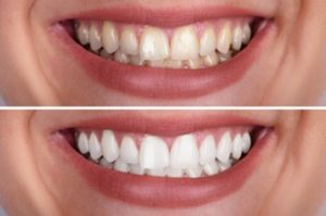 A comparison of a woman's smile before and after teeth whitening